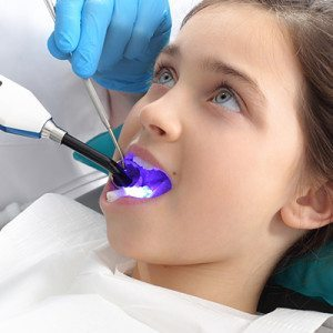 sealants kids dentist eugene